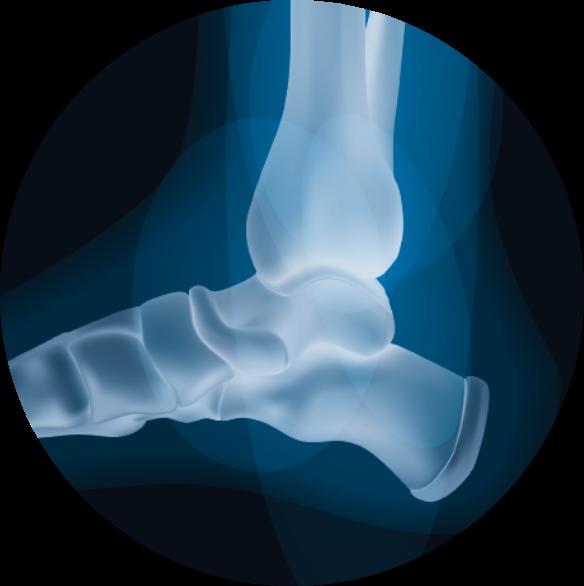 Tratamiento de lesiones en el pie. Juanetes y Neuroma de Morton