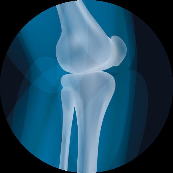 Tratamiento de lesiones en la rodilla, menisco y ligamentos